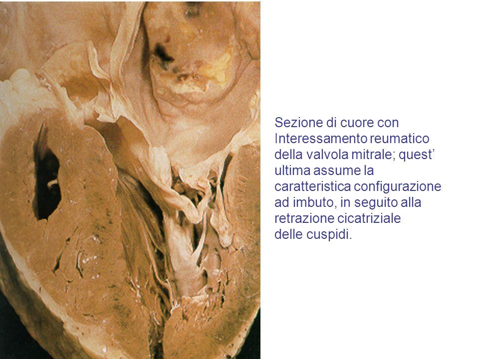 Sezione di cuore con Interessamento reumatico della valvola mitrale; quest ultima assume la caratteristica configurazione ad imbuto, in seguito alla r