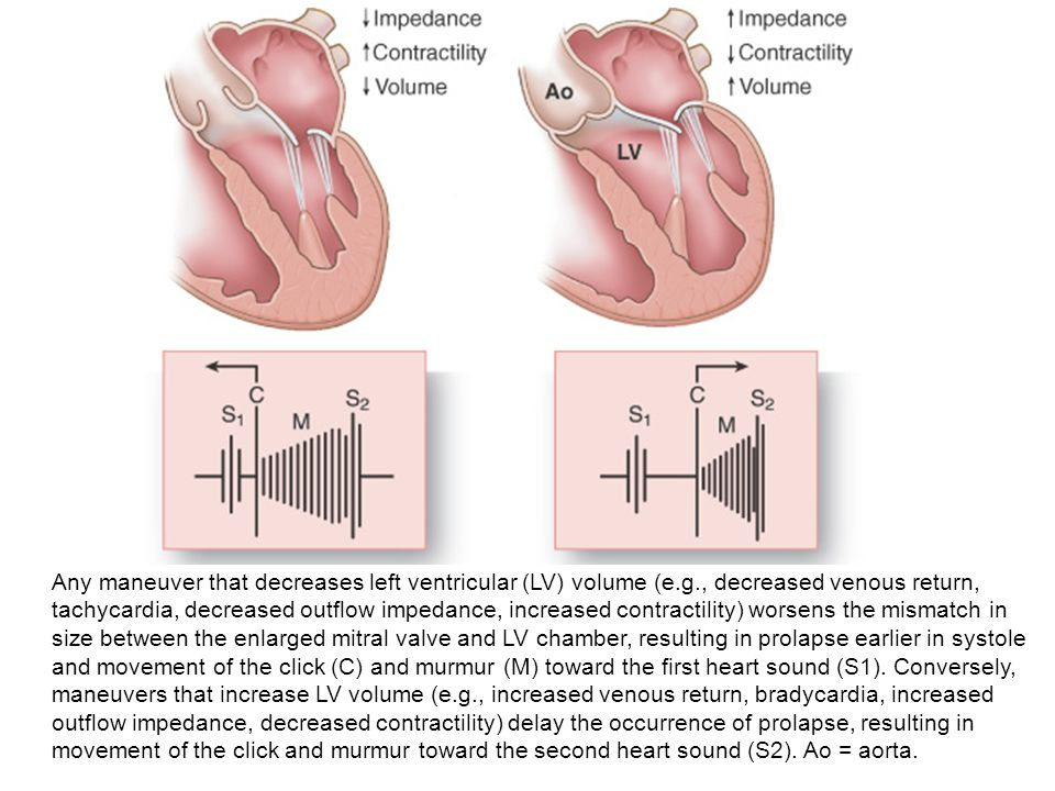 Any maneuver that decreases left ventricular (LV) volume (e.g., decreased venous return, tachycardia, decreased outflow impedance, increased contracti