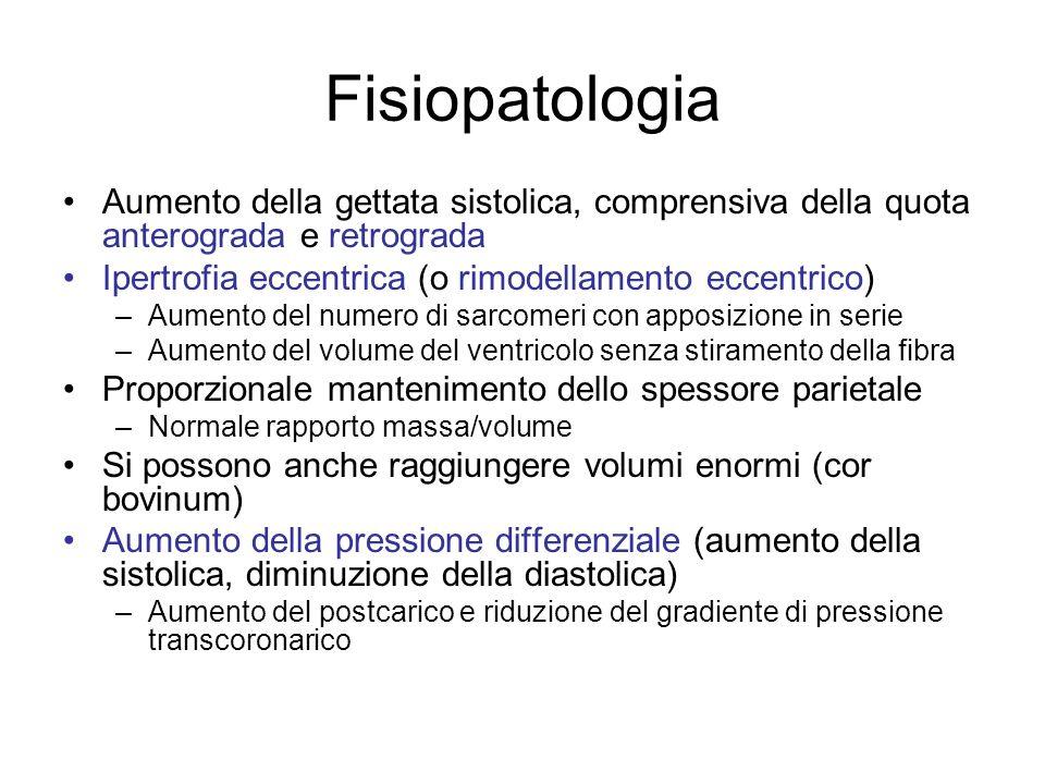 Fisiopatologia Aumento della gettata sistolica, comprensiva della quota anterograda e retrograda Ipertrofia eccentrica (o rimodellamento eccentrico) –