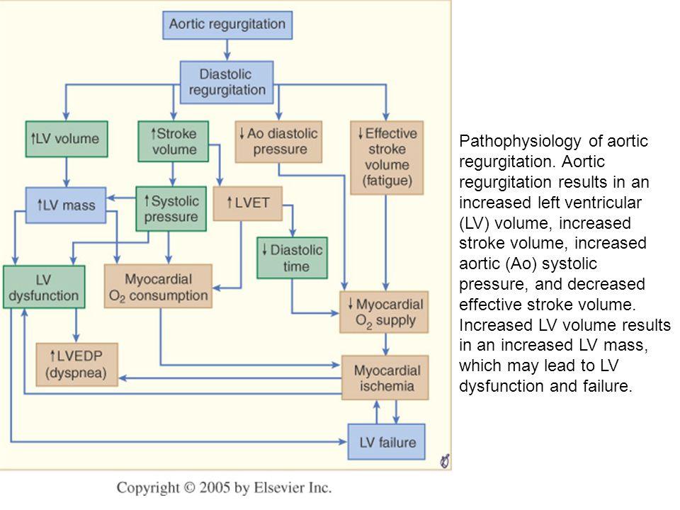 Pathophysiology of aortic regurgitation. Aortic regurgitation results in an increased left ventricular (LV) volume, increased stroke volume, increased