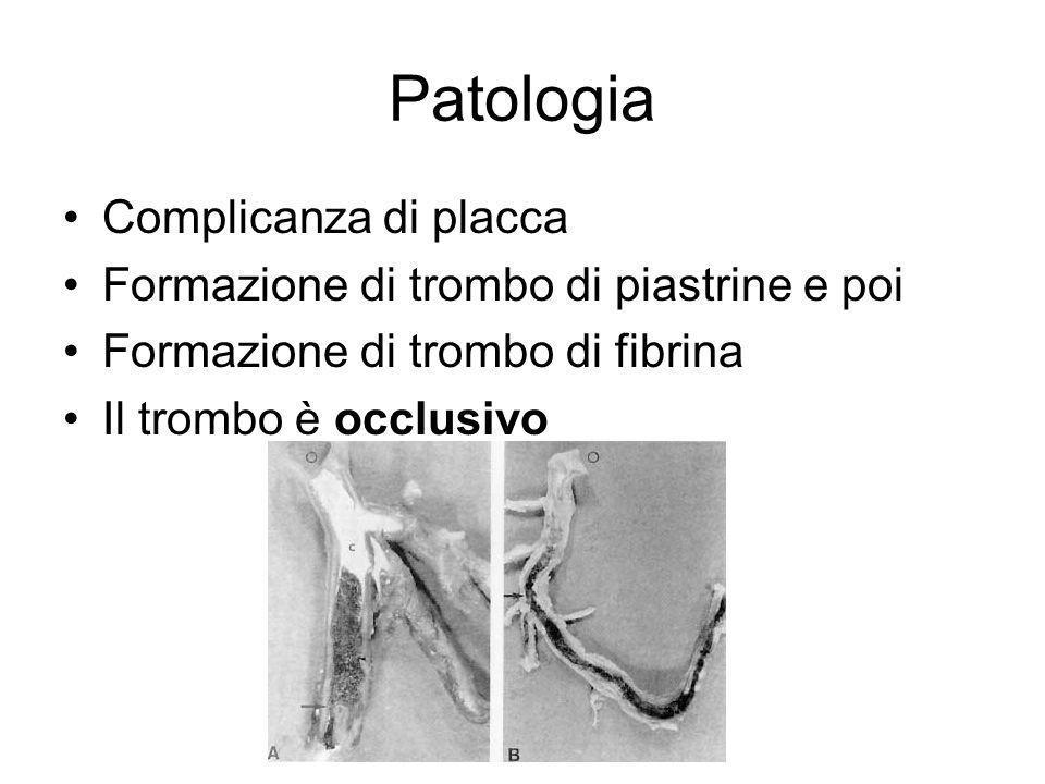 Patologia Complicanza di placca Formazione di trombo di piastrine e poi Formazione di trombo di fibrina Il trombo è occlusivo