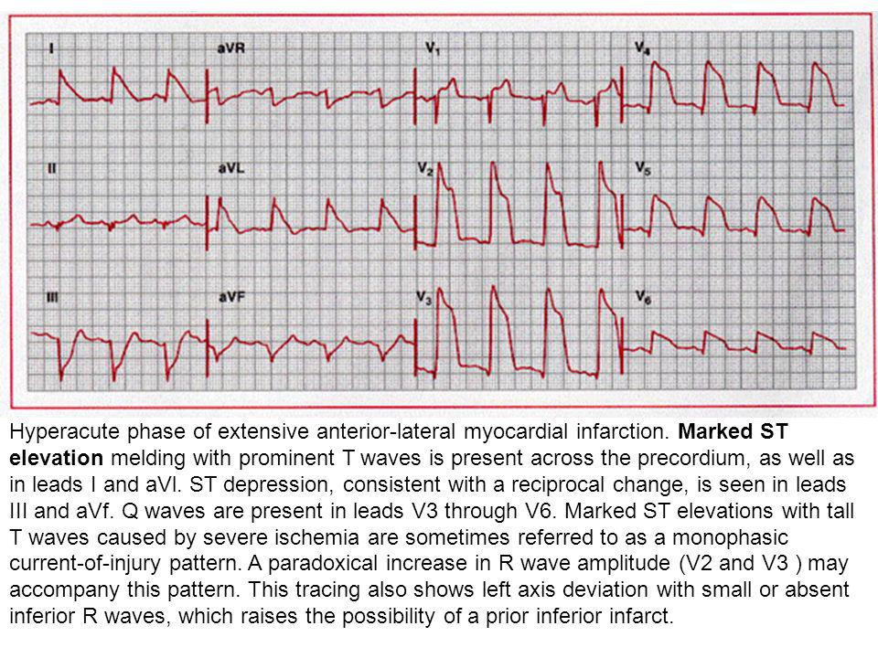 Hyperacute phase of extensive anterior-lateral myocardial infarction. Marked ST elevation melding with prominent T waves is present across the precord