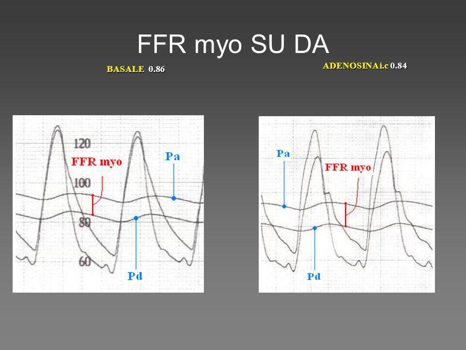 FFR myo SU DA BASALE 0.86 ADENOSINA i.c 0.84