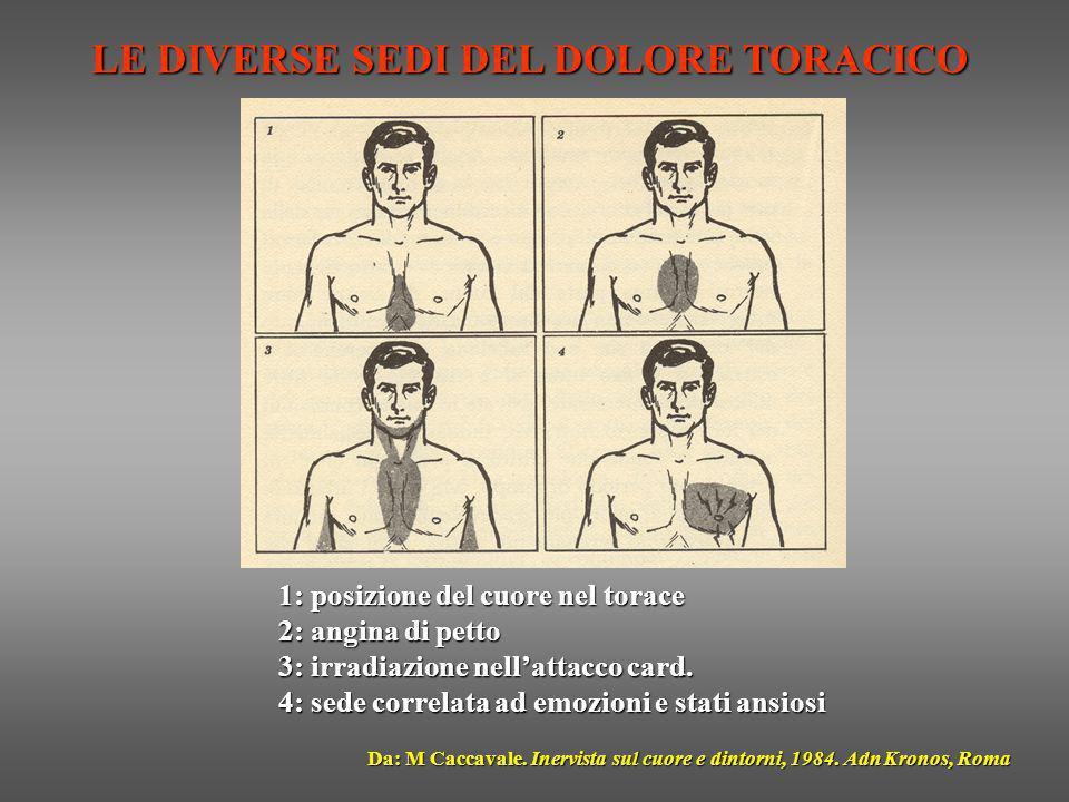 LE DIVERSE SEDI DEL DOLORE TORACICO Da: M Caccavale. Inervista sul cuore e dintorni, 1984. Adn Kronos, Roma 1: posizione del cuore nel torace 2: angin