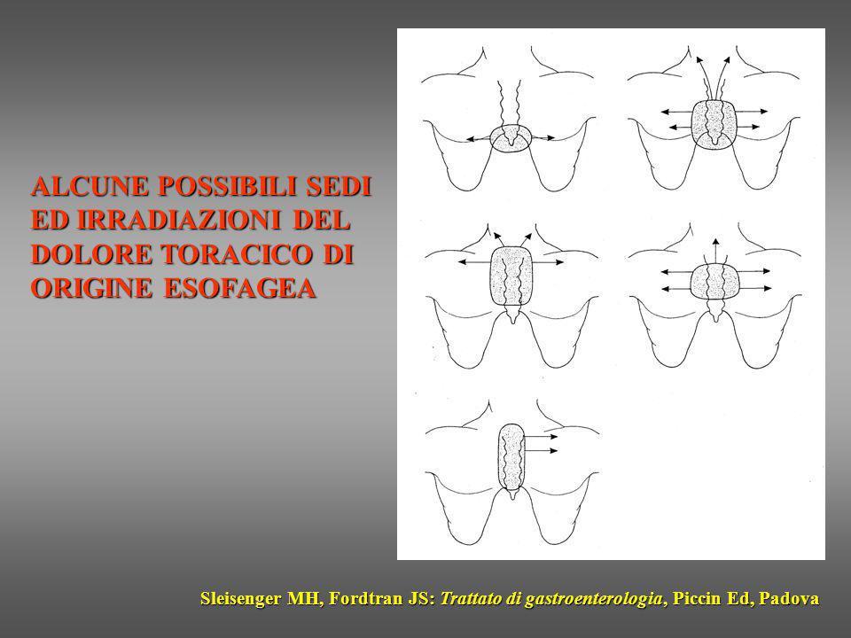 ALCUNE POSSIBILI SEDI ED IRRADIAZIONI DEL DOLORE TORACICO DI ORIGINE ESOFAGEA Sleisenger MH, Fordtran JS: Trattato di gastroenterologia, Piccin Ed, Pa
