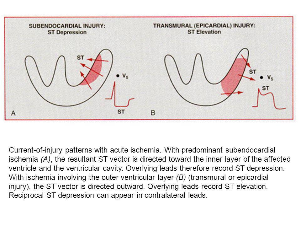 Current-of-injury patterns with acute ischemia. With predominant subendocardial ischemia (A), the resultant ST vector is directed toward the inner lay