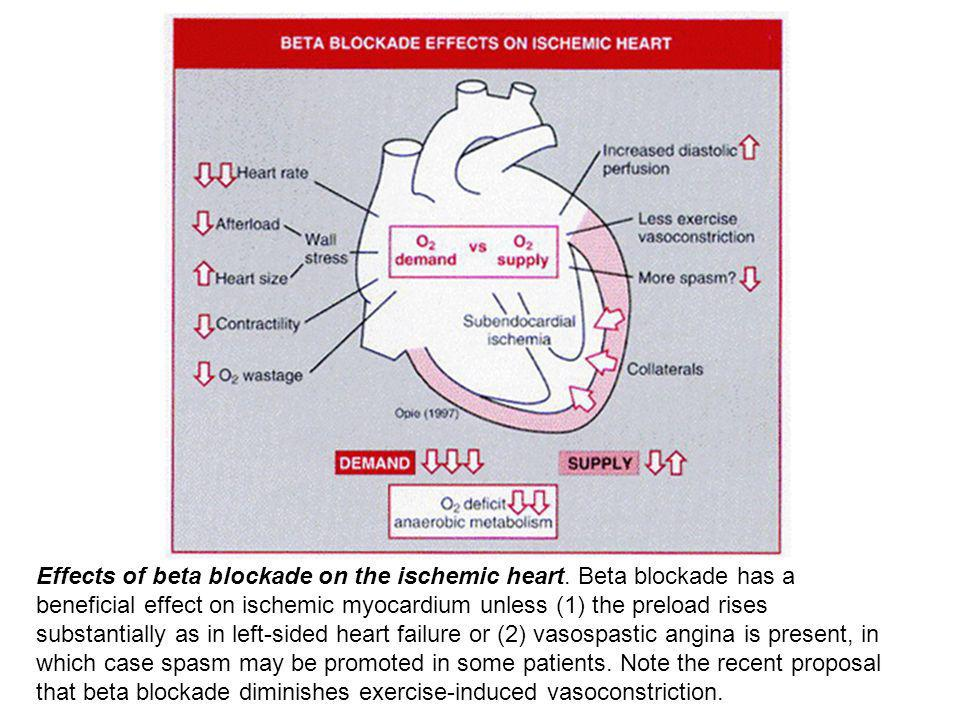 Effects of beta blockade on the ischemic heart.