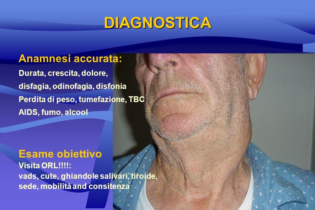 DIAGNOSTICA Anamnesi accurata: Durata, crescita, dolore, disfagia, odinofagia, disfonia Perdita di peso, tumefazione, TBC AIDS, fumo, alcool Esame obi