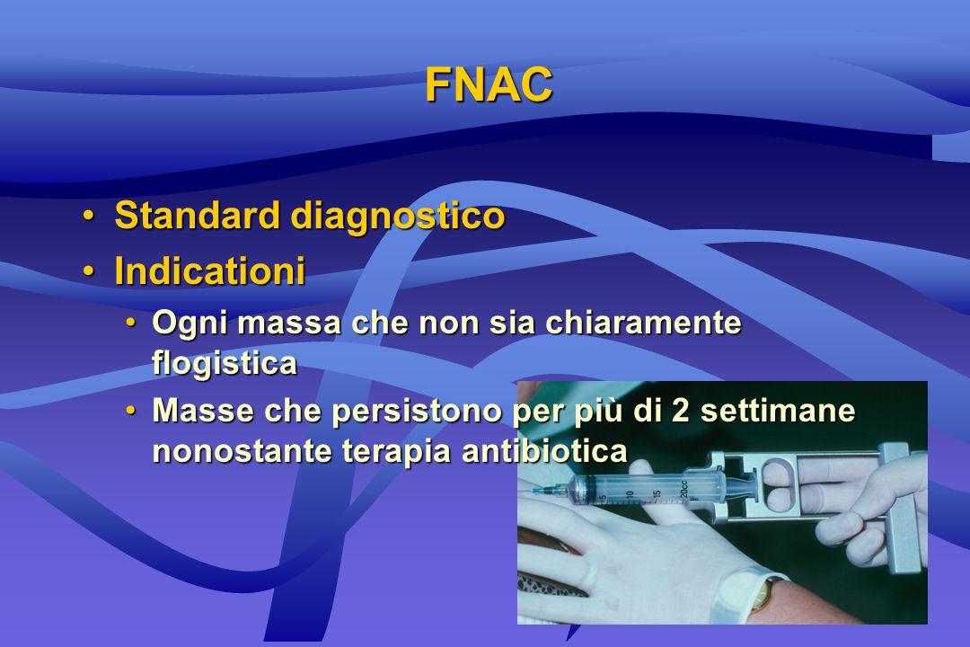 FNAC Standard diagnosticoStandard diagnostico IndicationiIndicationi Ogni massa che non sia chiaramente flogisticaOgni massa che non sia chiaramente f