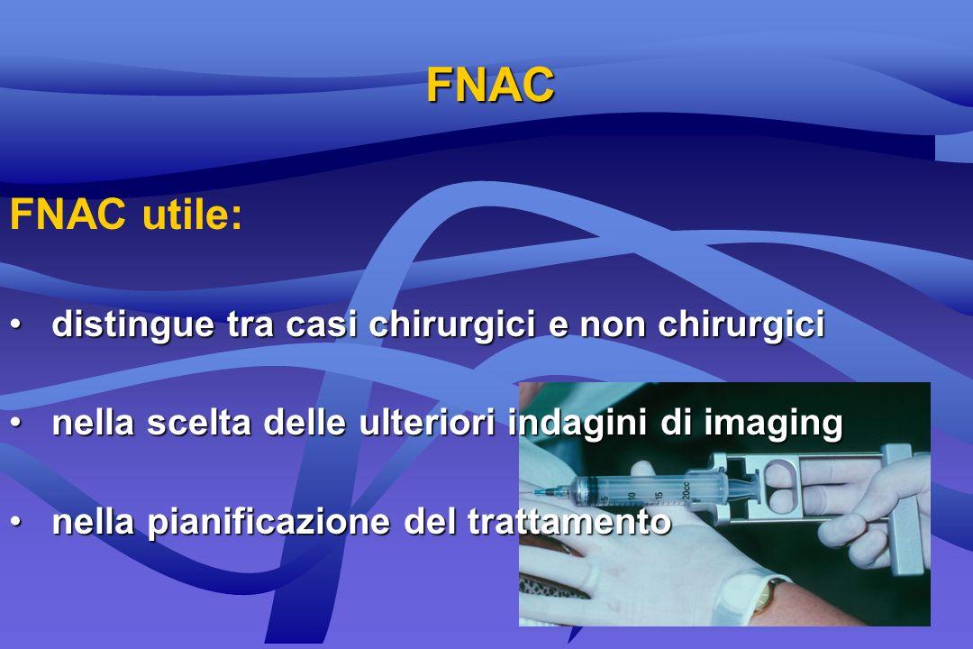 FNAC FNAC utile: distingue tra casi chirurgici e non chirurgici distingue tra casi chirurgici e non chirurgici nella scelta delle ulteriori indagini d
