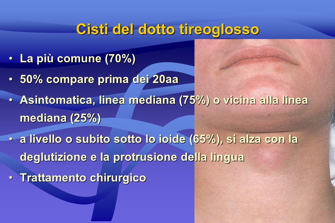 Cisti del dotto tireoglosso La più comune (70%)La più comune (70%) 50% compare prima dei 20aa50% compare prima dei 20aa Asintomatica, linea mediana (7