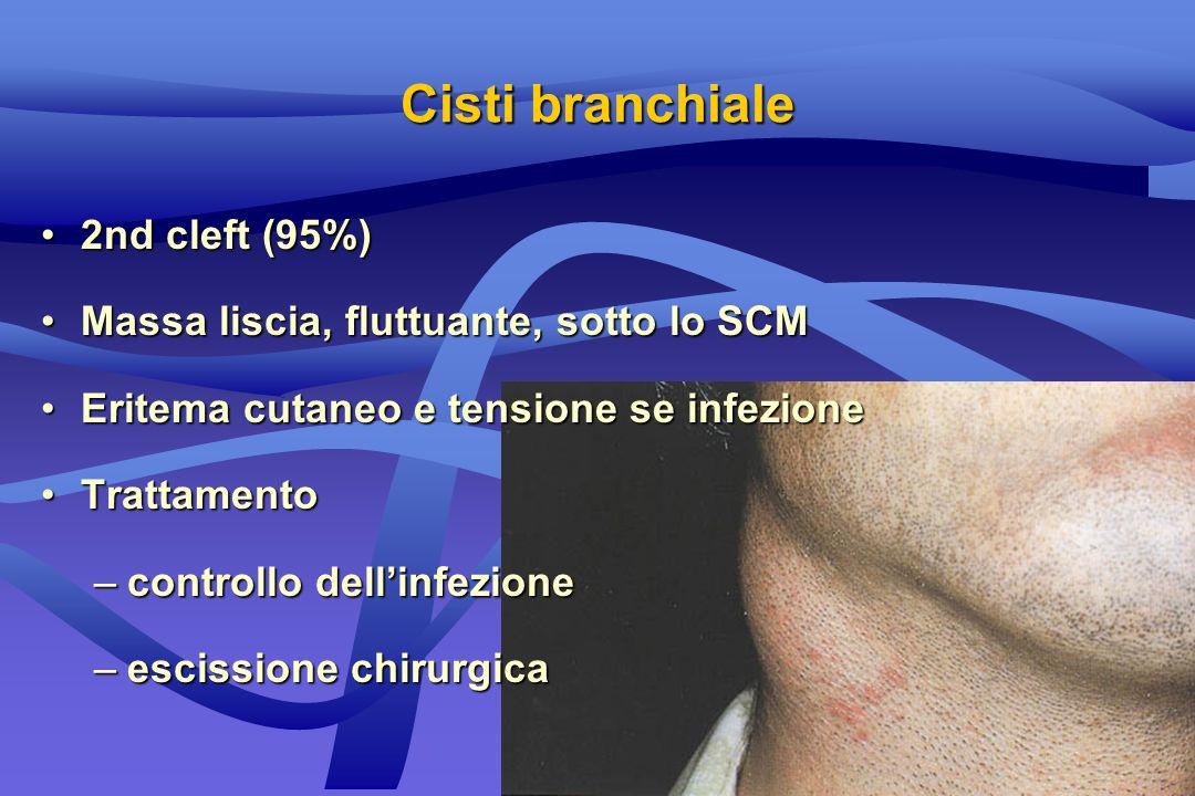 2nd cleft (95%)2nd cleft (95%) Massa liscia, fluttuante, sotto lo SCMMassa liscia, fluttuante, sotto lo SCM Eritema cutaneo e tensione se infezioneEri