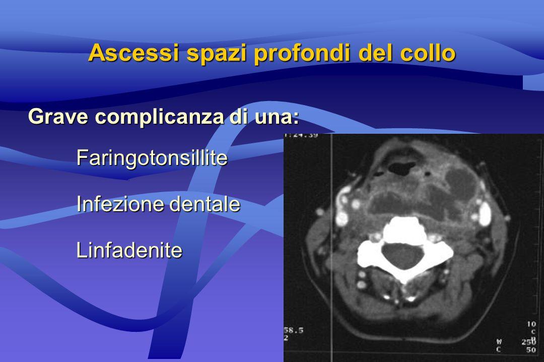 Grave complicanza di una: Faringotonsillite Infezione dentale Linfadenite Ascessi spazi profondi del collo