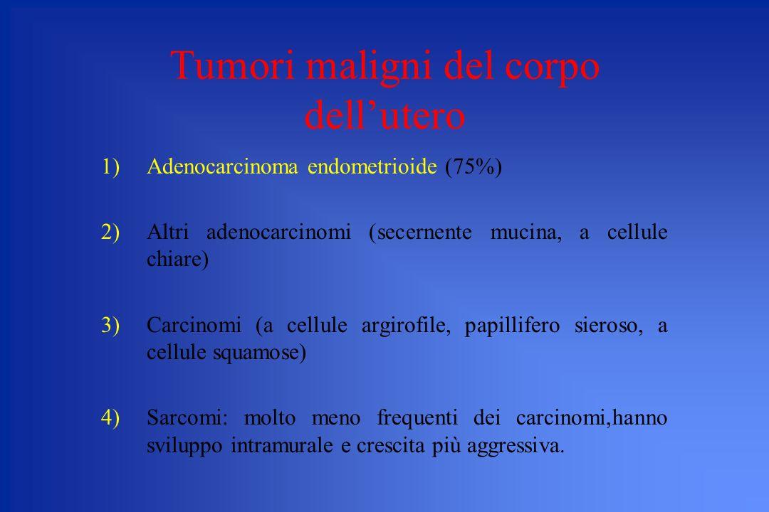 Tumori maligni del corpo dellutero 1)Adenocarcinoma endometrioide (75%) 2)Altri adenocarcinomi (secernente mucina, a cellule chiare) 3)Carcinomi (a ce