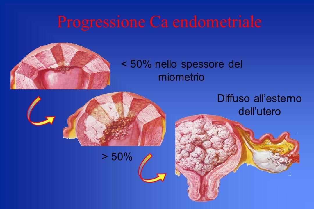 Progressione Ca endometriale Diffuso allesterno dellutero < 50% nello spessore del miometrio > 50%