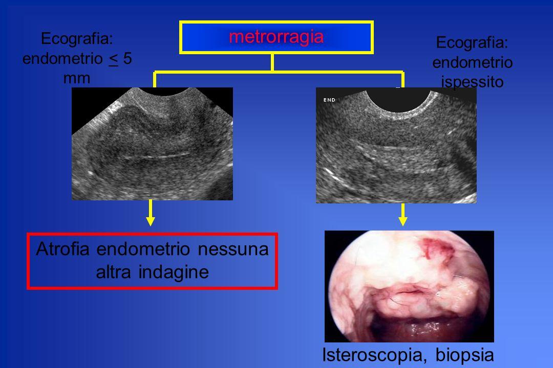 metrorragia Ecografia: endometrio < 5 mm Atrofia endometrio nessuna altra indagine Ecografia: endometrio ispessito Isteroscopia, biopsia