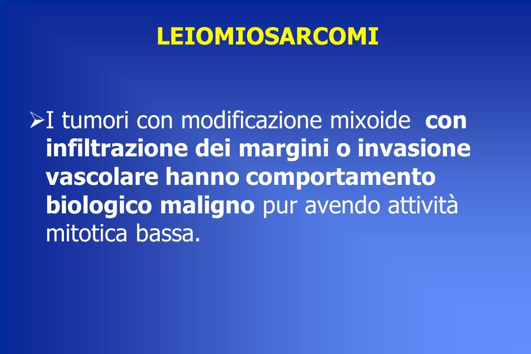 LEIOMIOSARCOMI I tumori con modificazione mixoide con infiltrazione dei margini o invasione vascolare hanno comportamento biologico maligno pur avendo