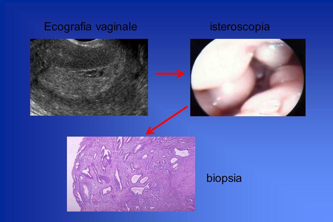 Ecografia vaginaleisteroscopia biopsia