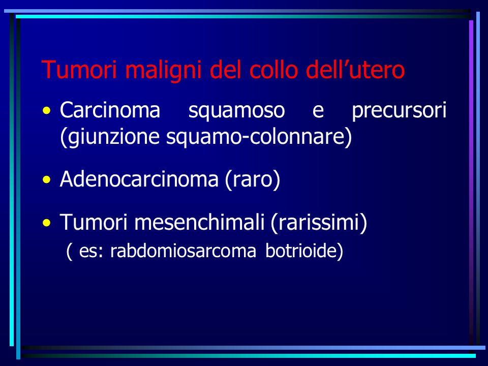 Tumori maligni del collo dellutero Carcinoma squamoso e precursori (giunzione squamo-colonnare) Adenocarcinoma (raro) Tumori mesenchimali (rarissimi) ( es: rabdomiosarcoma botrioide)