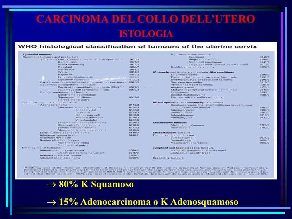 CARCINOMA DEL COLLO DELLUTERO ISTOLOGIA 80% K Squamoso 15% Adenocarcinoma o K Adenosquamoso