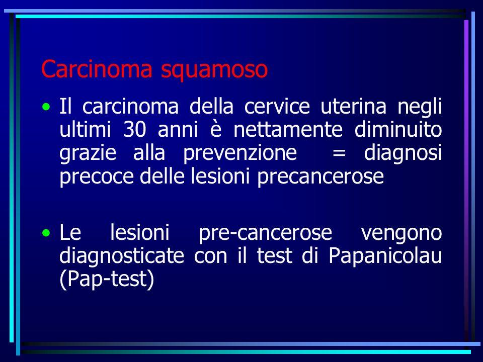 Carcinoma squamoso Il carcinoma della cervice uterina negli ultimi 30 anni è nettamente diminuito grazie alla prevenzione = diagnosi precoce delle les