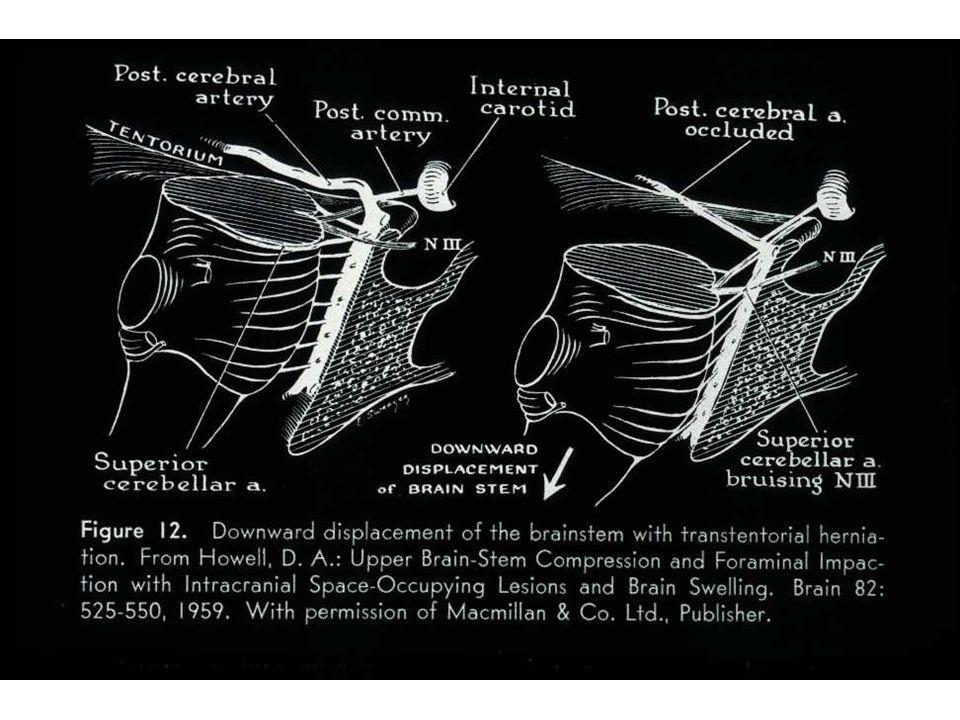 Morte cerebrale 1.Condizioni: A: danno cerebrale grave che determina perdita del controllo nervoso delle funzioni vitali B: Tecniche rianimatorie assicurano respirazione e circolazione in modo artificiale 2.Semeiologia: A.