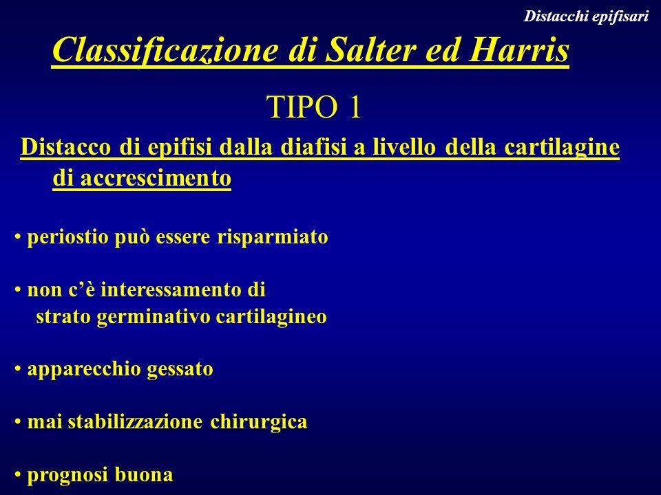 Classificazione di Salter ed Harris TIPO 1 Distacco di epifisi dalla diafisi a livello della cartilagine di accrescimento periostio può essere risparm