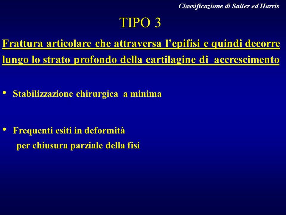 TIPO 3 Frattura articolare che attraversa lepifisi e quindi decorre lungo lo strato profondo della cartilagine di accrescimento Stabilizzazione chirur