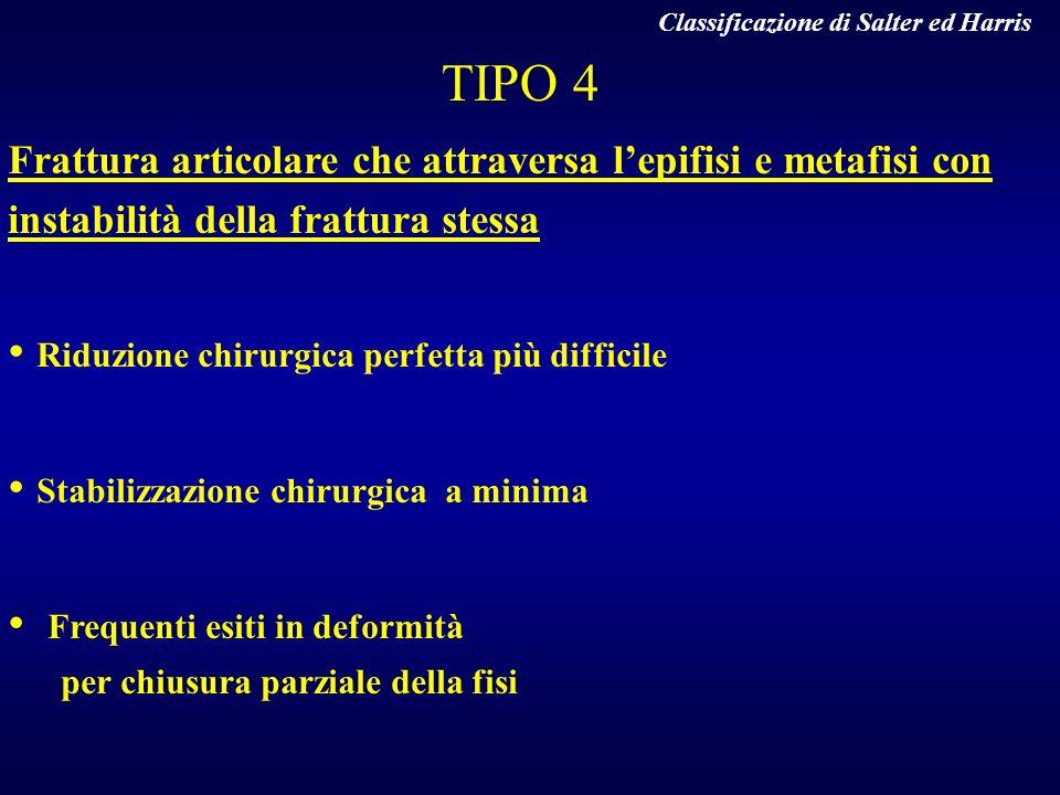 TIPO 4 Frattura articolare che attraversa lepifisi e metafisi con instabilità della frattura stessa Riduzione chirurgica perfetta più difficile Stabil