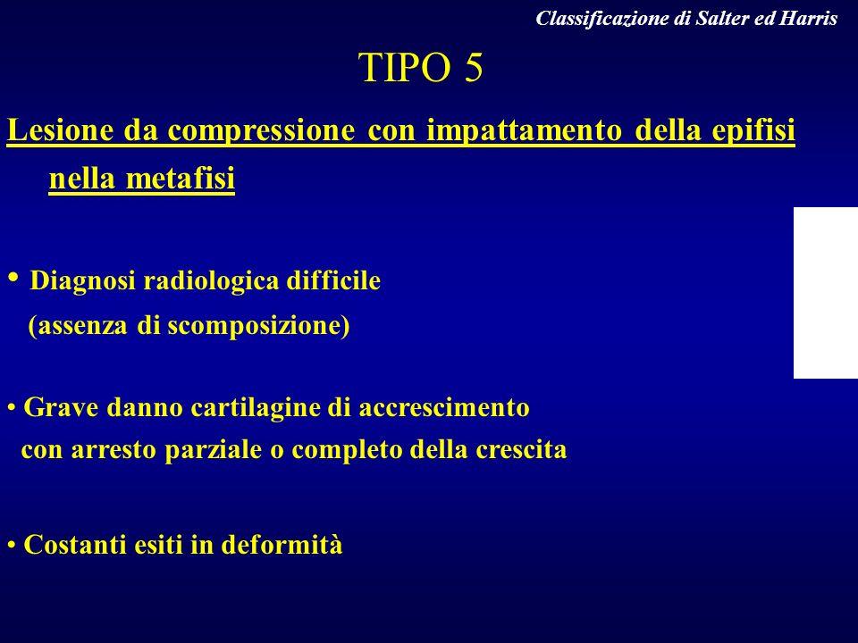 TIPO 5 Lesione da compressione con impattamento della epifisi nella metafisi Diagnosi radiologica difficile (assenza di scomposizione) Grave danno car