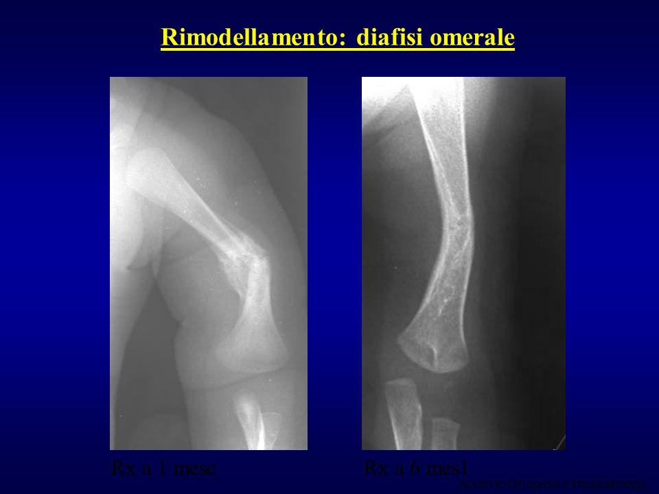Rimodellamento: diafisi omerale Rx a 1 meseRx a 6 mes1 Archivio Ortopedia e Traumatologia