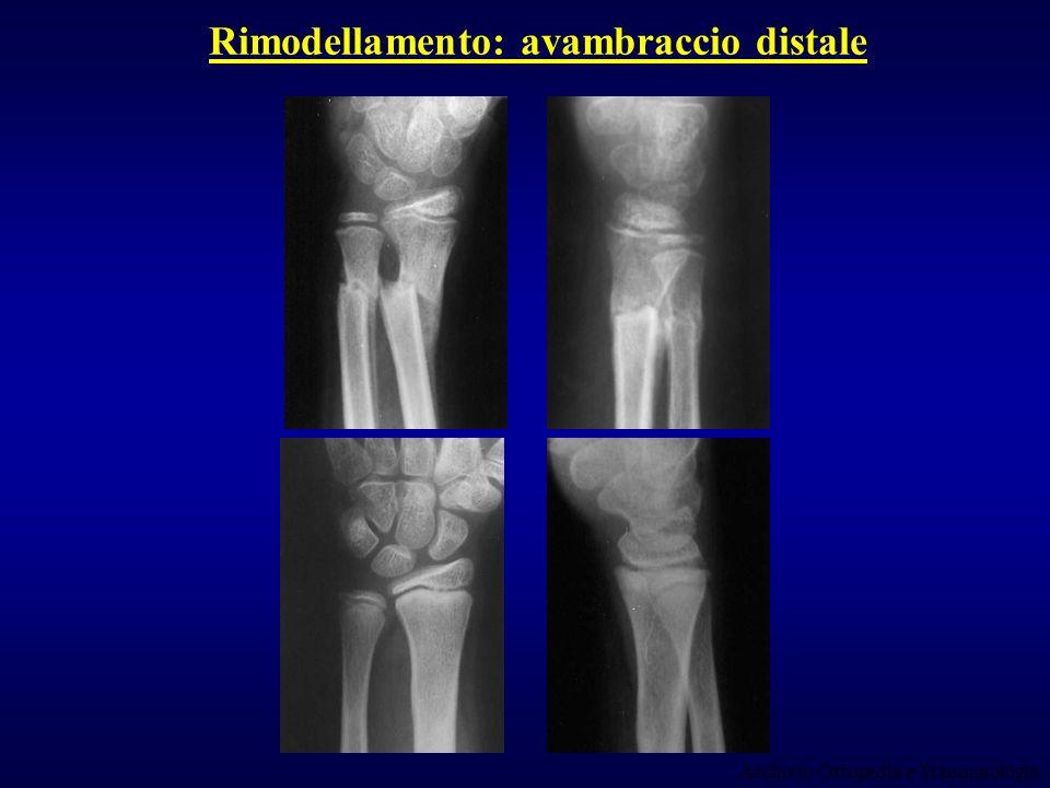 Rimodellamento: avambraccio distale Archivio Ortopedia e Traumatologia