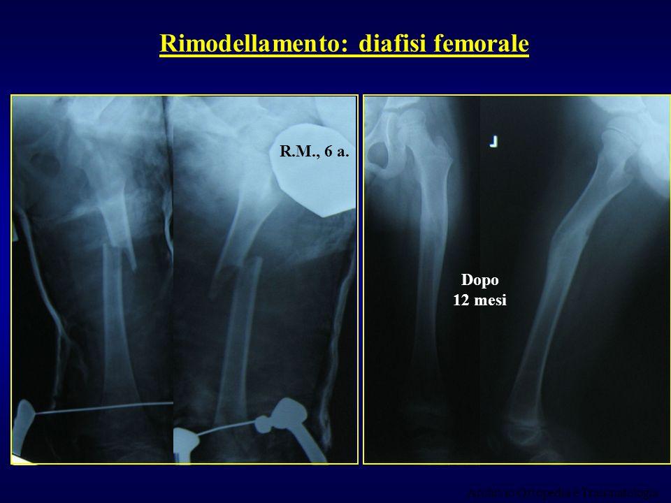 Rimodellamento: diafisi femorale Archivio Ortopedia e Traumatologia R.M., 6 a. Dopo 12 mesi