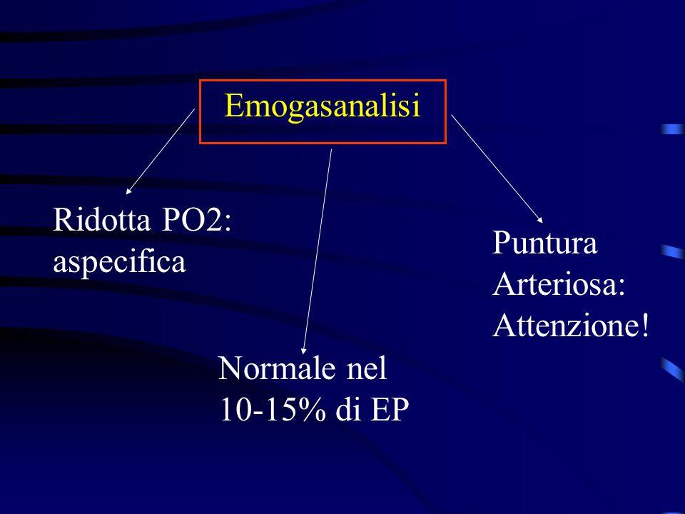 Emogasanalisi Ridotta PO2: aspecifica Normale nel 10-15% di EP Puntura Arteriosa: Attenzione!