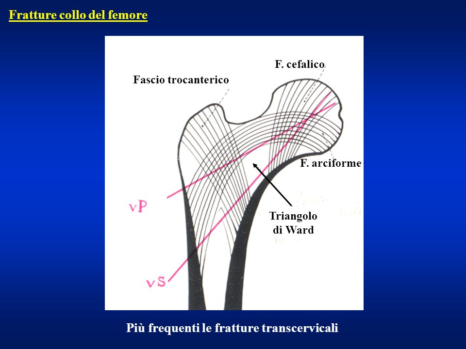 Estremo prossimale – fr. collo frequenti nellanziano Fratture di femore extrarotazione