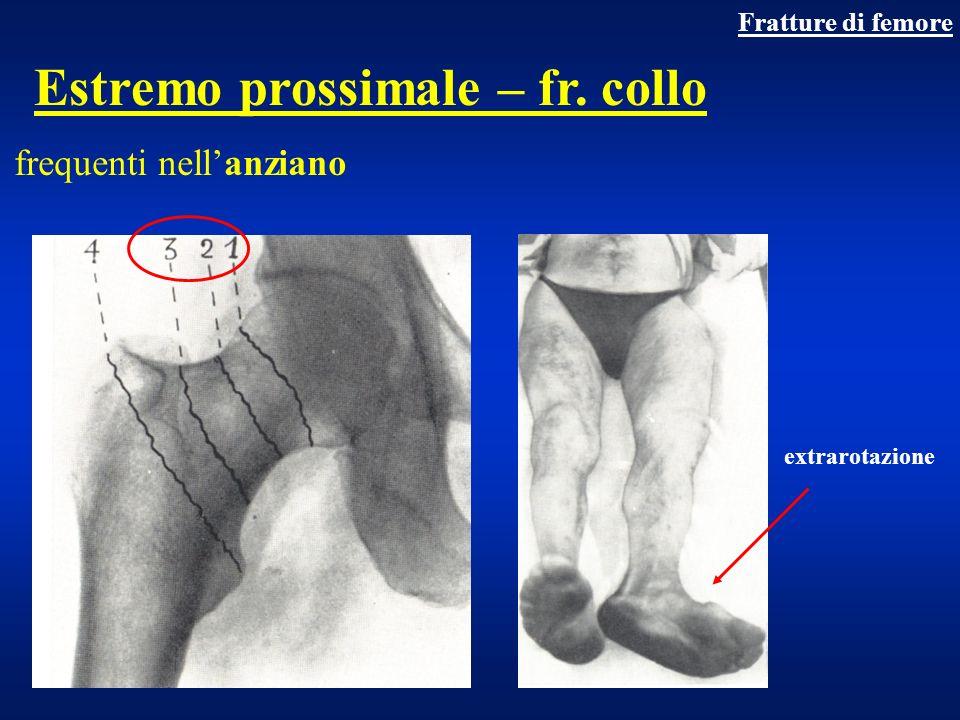 Fratture collo del femore Complicanze tardive Osteonecrosi, pseudoartrosi