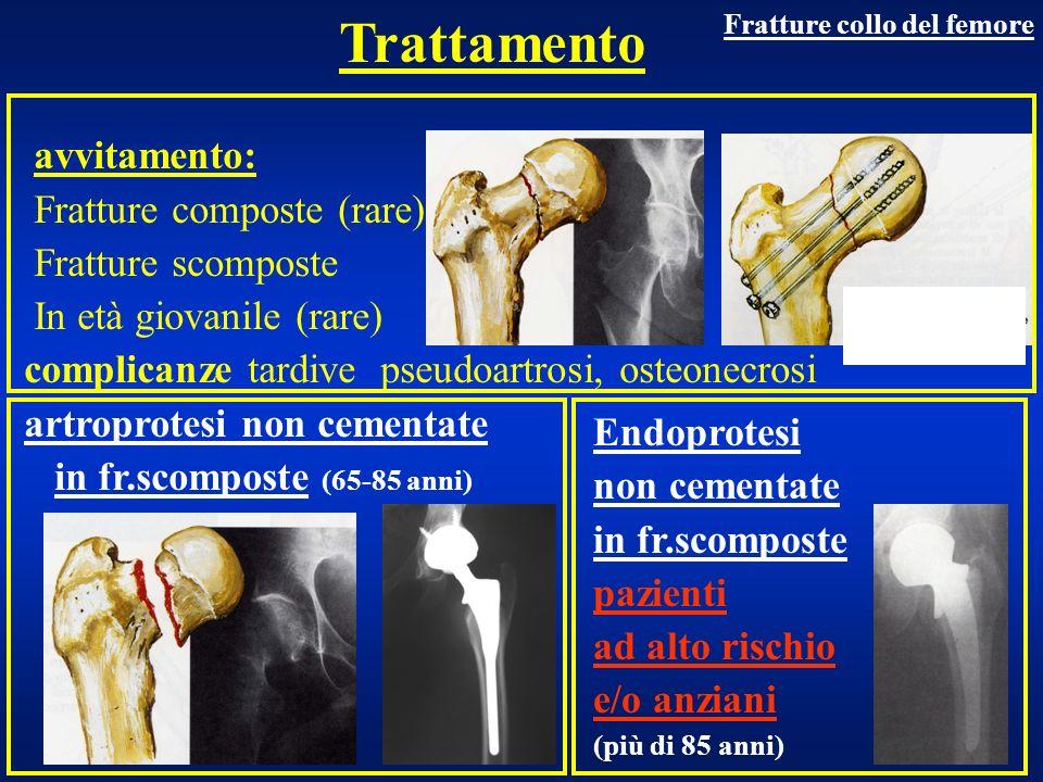 Estremo prossimale Fratture di femore Frattura trocanterica Fr. Sottotroc.