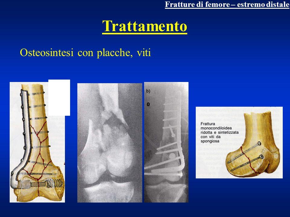 Fratture di rotula trauma diretto Composte, diastasate (molto frequentemente), comminute diagnosi clinica (deficit apparato estensore) + rx consolidazione 30 giorni complicanza tardiva: rigidità articolare