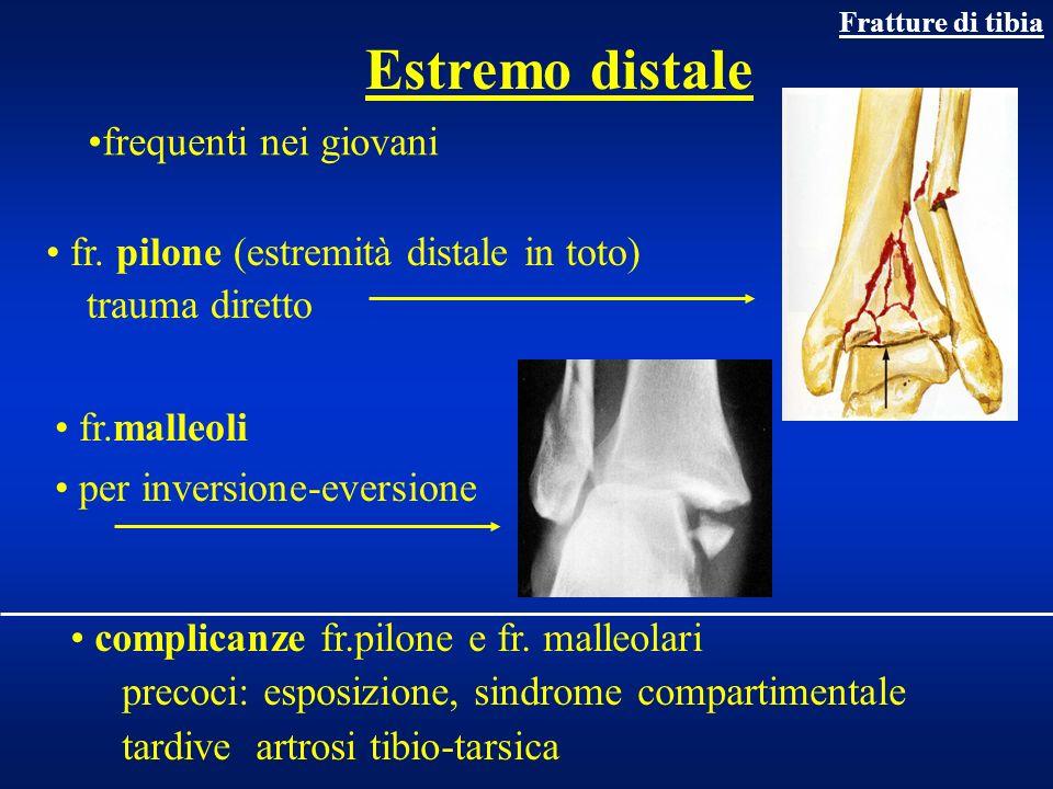 Trattamento Fratture e.distale di tibia Pilone: osteosintesi con placca, viti, fiss esterno Malleoli: osteosintesi con viti o tirante