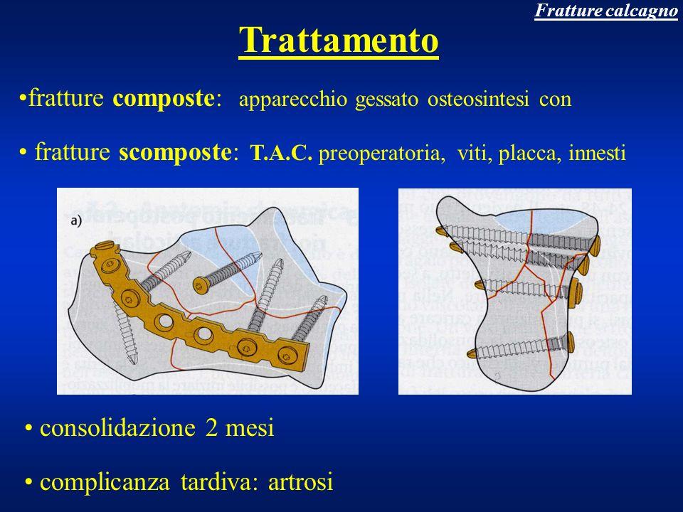 Frattura ossa metatarsali e falangi trauma diretto spesso buona composizione dei frammenti consolidazione 30 giorni