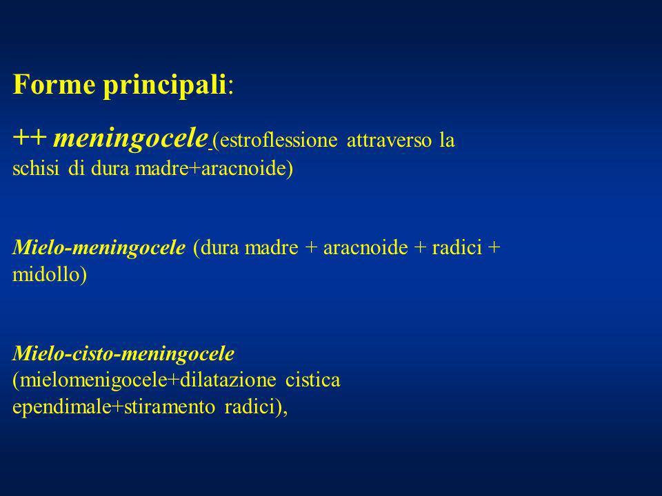 Forme principali: ++ meningocele (estroflessione attraverso la schisi di dura madre+aracnoide) Mielo-meningocele (dura madre + aracnoide + radici + mi