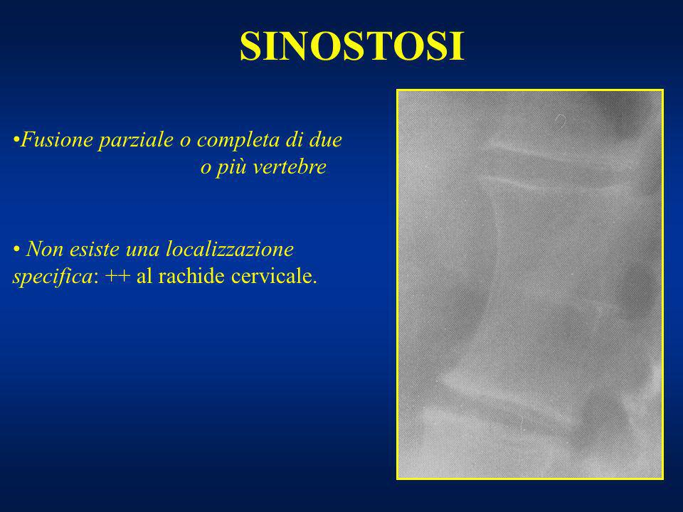 SINOSTOSI Fusione parziale o completa di due o più vertebre Non esiste una localizzazione specifica: ++ al rachide cervicale.