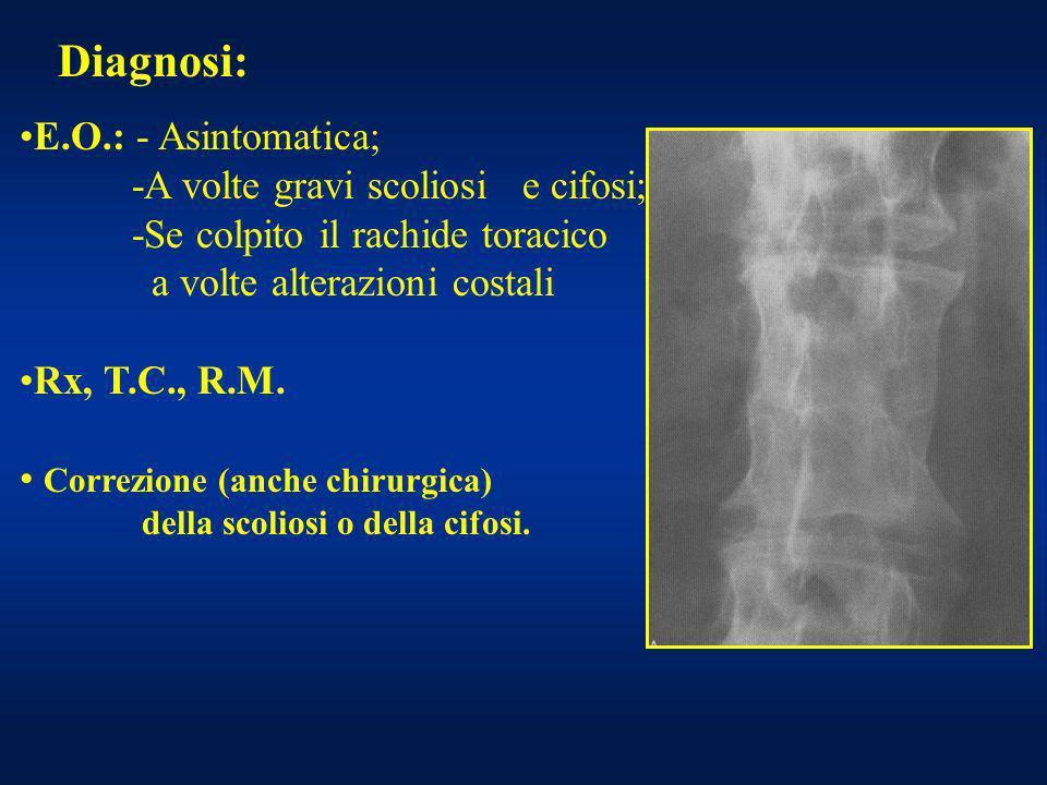 Diagnosi: E.O.: - Asintomatica; -A volte gravi scoliosi e cifosi; -Se colpito il rachide toracico a volte alterazioni costali Rx, T.C., R.M. Correzion