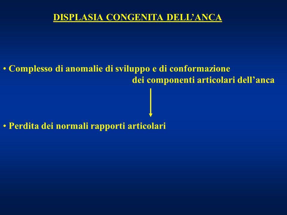 DISPLASIA CONGENITA DELLANCA Complesso di anomalie di sviluppo e di conformazione dei componenti articolari dellanca Perdita dei normali rapporti arti