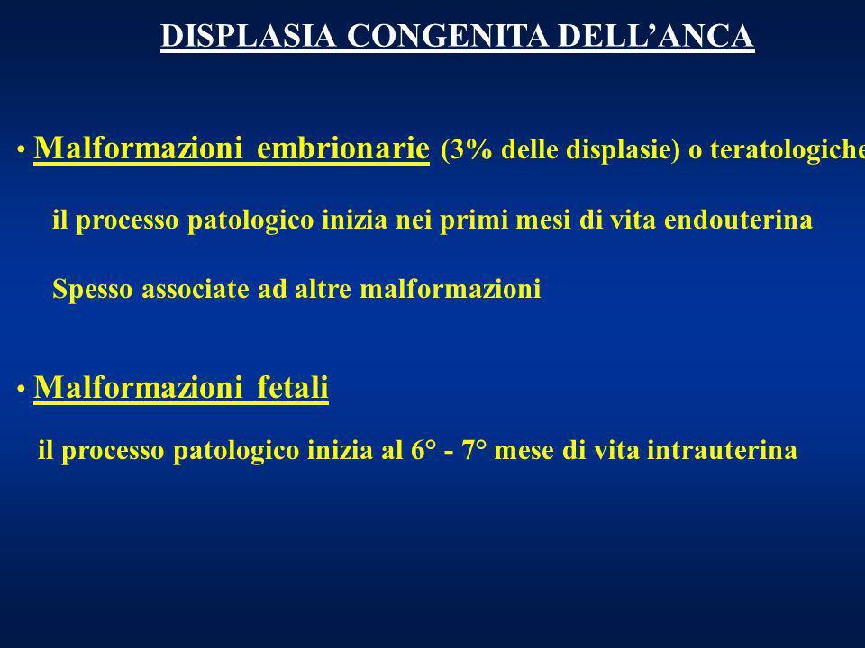 DISPLASIA CONGENITA DELLANCA Malformazioni embrionarie (3% delle displasie) o teratologiche il processo patologico inizia nei primi mesi di vita endou