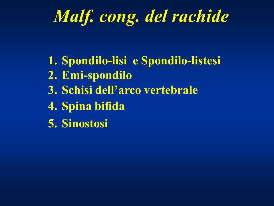 Malf. cong. del rachide 1.Spondilo-lisi e Spondilo-listesi 2.Emi-spondilo 3.Schisi dellarco vertebrale 4.Spina bifida 5.Sinostosi