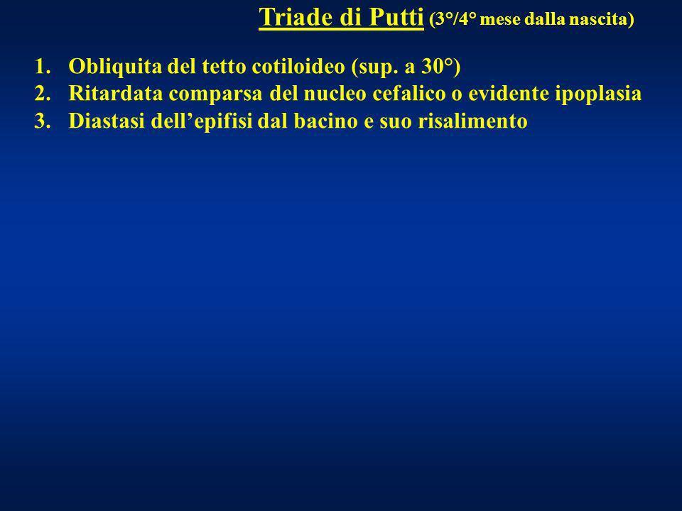 Triade di Putti (3°/4° mese dalla nascita) 1.Obliquita del tetto cotiloideo (sup. a 30°) 2.Ritardata comparsa del nucleo cefalico o evidente ipoplasia