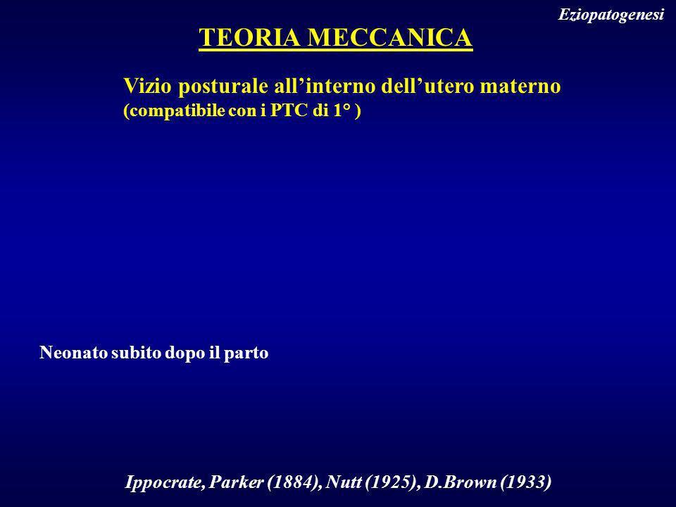 TEORIA MECCANICA Eziopatogenesi Vizio posturale allinterno dellutero materno (compatibile con i PTC di 1° ) Ippocrate, Parker (1884), Nutt (1925), D.B