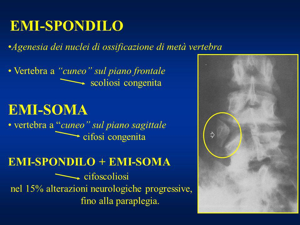 EMI-SPONDILO Agenesia dei nuclei di ossificazione di metà vertebra Vertebra a cuneo sul piano frontale scoliosi congenita EMI-SOMA vertebra a cuneo su