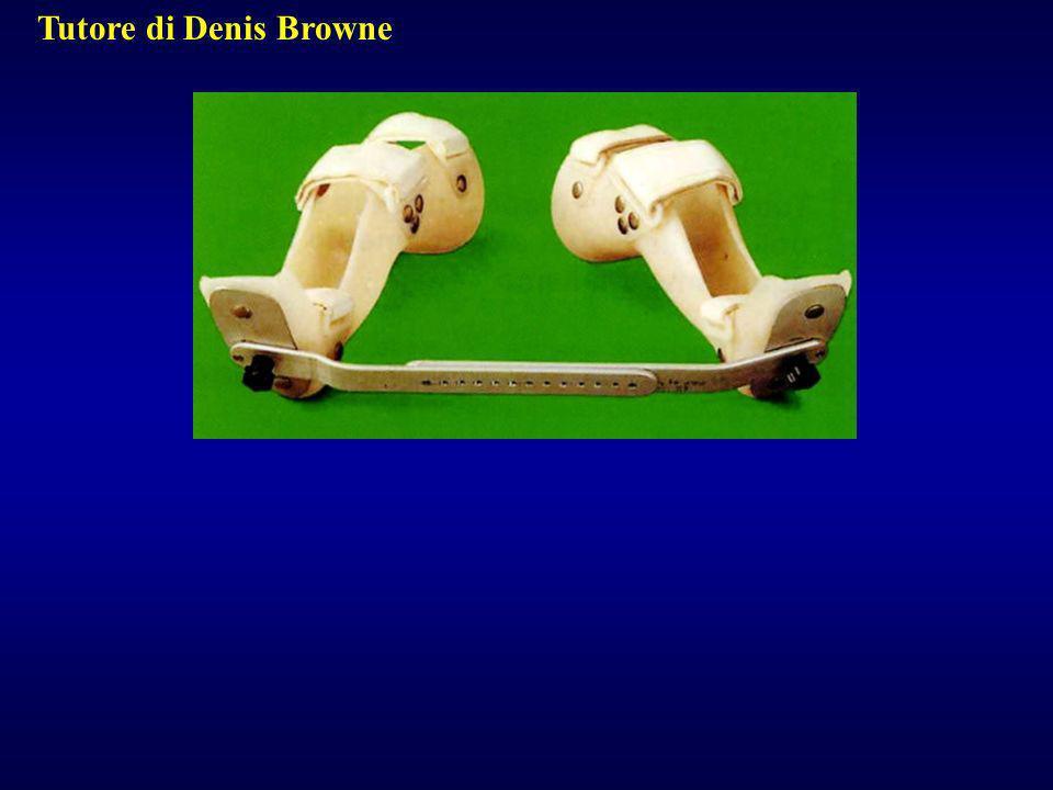 Tutore di Denis Browne